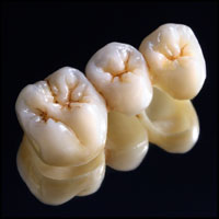 Dental-Crowns bridge
