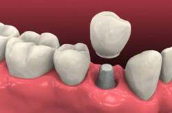 dental-implants-1
