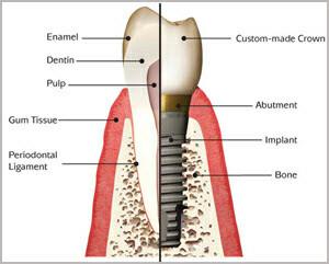 dental-implants 2